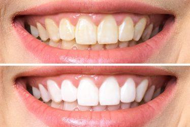 blanqueamiento dental o carillas dentales